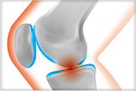 関節痛のイラスト